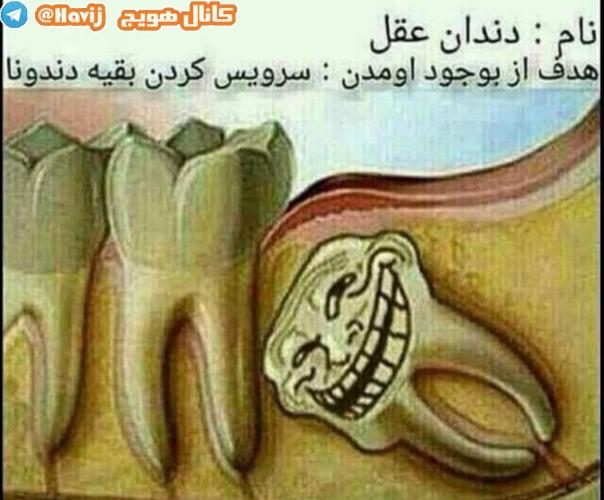 جک آباد سفلی . سفلی . جک آباد . جک . مشتیا . داش مشتی . داش جوات . دندان عقل . دندان